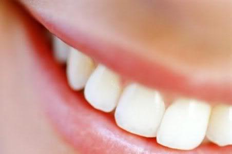 Tratamento Odontológico Gratuito RJ