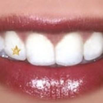 piercing dental - fotos, preços, onde comprar 3