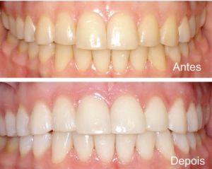 Clareamento Dental A Laser O Que Nao Pode Comer
