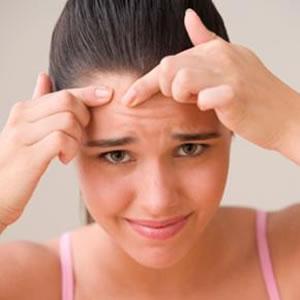 Como Acabar com as Espinhas na Adolescência