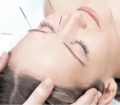 saiba-o-que-é-acupuntura-e-seus-benefícios