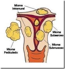 Como os Mioma  se Desenvolvem no Nosso Corpo